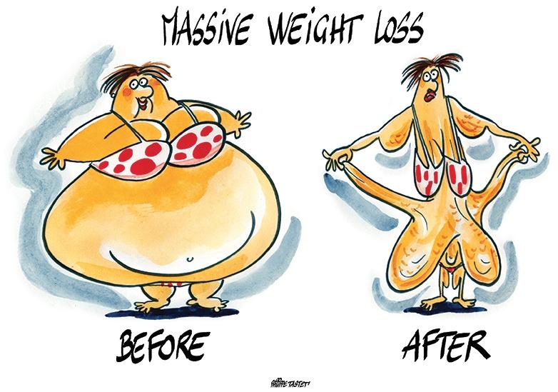image traitement obésité